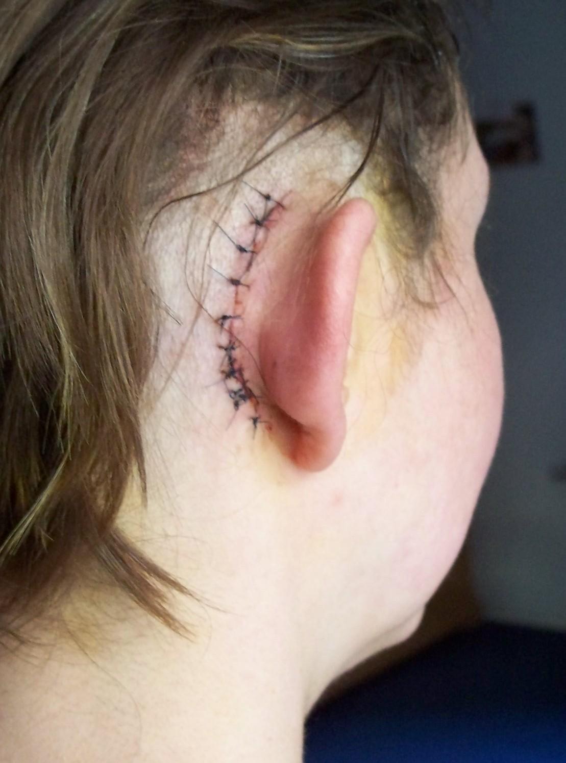 mein zweites cochlea implantat ci ein sehr erfreulicher. Black Bedroom Furniture Sets. Home Design Ideas